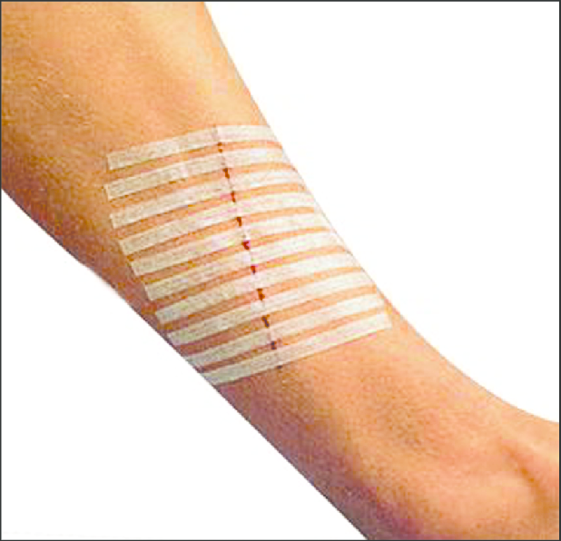 Steri Strips on wound